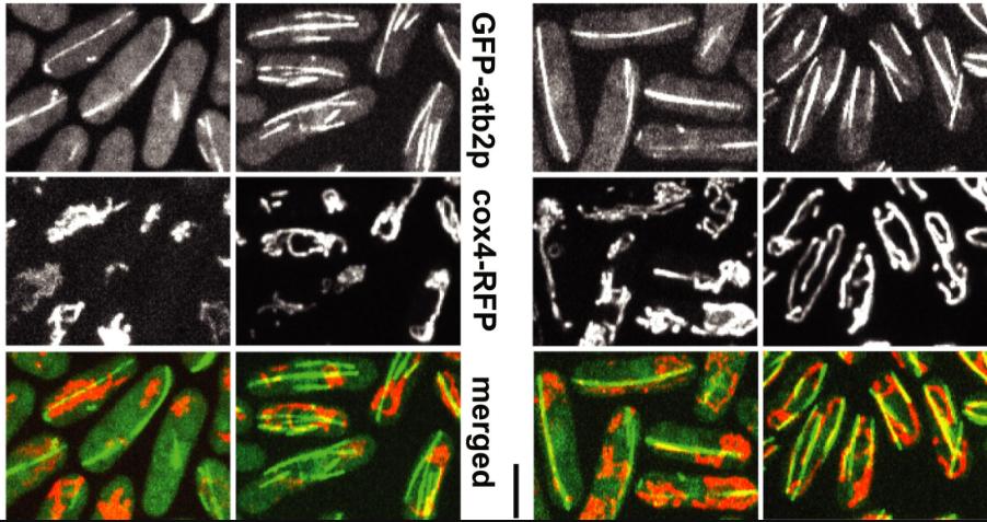 Imaging of mitochondria positioning using fast temperature regulation
