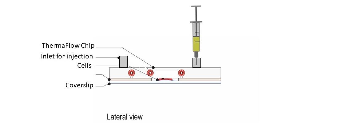 Step 5: Medium injection