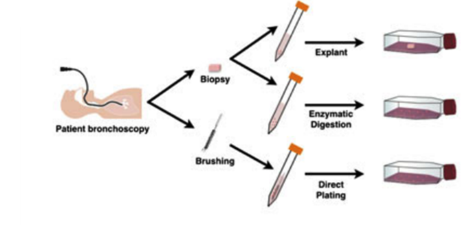 Lung Biopsies Beyond Histological Diagnosis : Ex-vivo Culturing and Precision Cut Slices for Precision Pharmacology