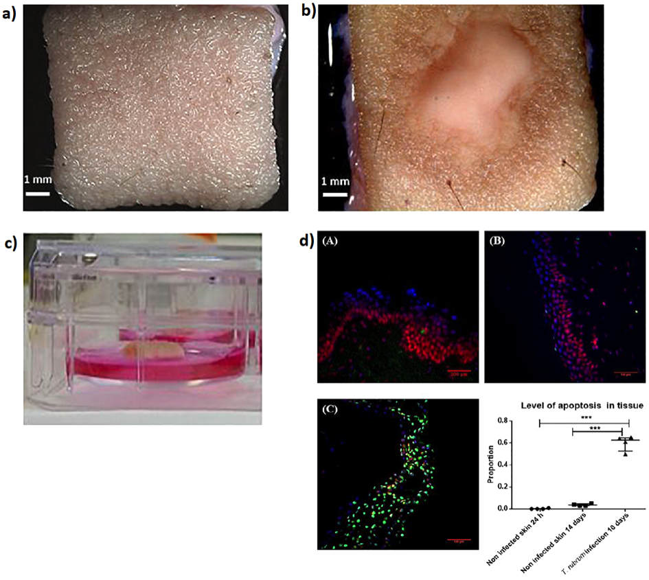 Skin Biopsies: In vitro Culturing Approaches for Precision Pharmacology in Skin Pathologies